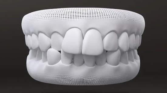 Dents chevauchées