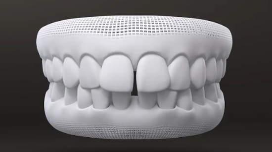 Espace entre les dents